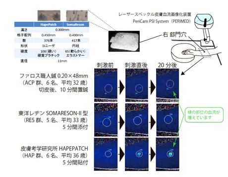レーザースペックル血流画像化装置にて 「 刺さない針の研究 」